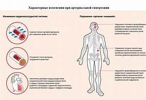 Гипертония левого желудочка это опасно