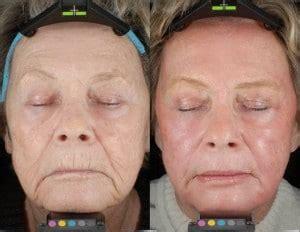 CO2 Laser Fractional Skin Resurfacing | Silk Touch Med Spa