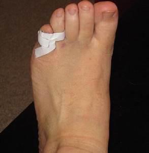 Грибок стопы ноги пахнут