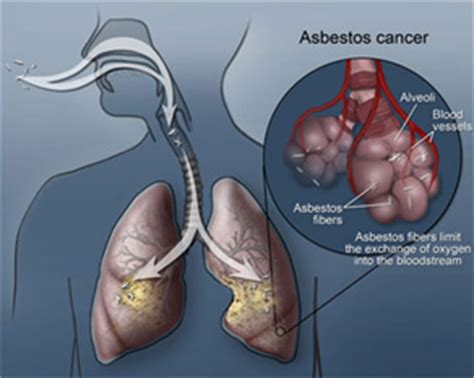 effects of asbestos universal enviornmental services