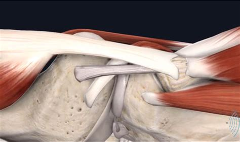 [WEBINAR] Musculoskeletal Ultrasound Imaging - The ...