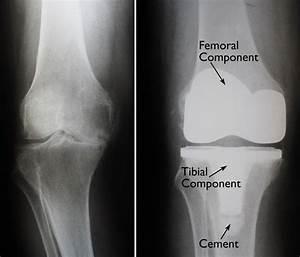 Total Knee Replacement - Orthoinfo