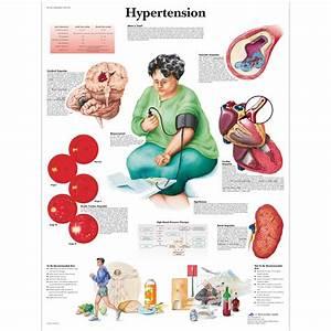 Hypertension Chart 4006683 Vr1361uu Cardiovascular