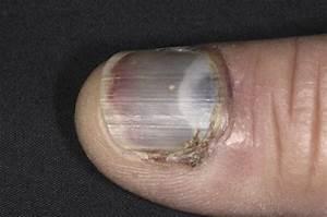 Fingernail And Toenail Injury - Skin Disorders