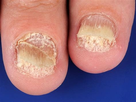 Psoriasis nagels foto
