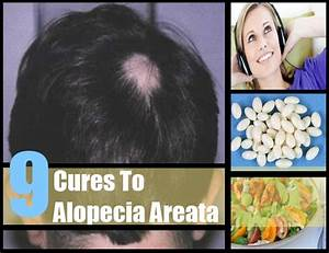 9 Effective Natural Cures For Alopecia Areata How To