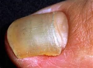 Грибок между пальцами ног лечение в домашних