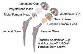 Ceramic Hip Joint Replacement Devices | Earl's View