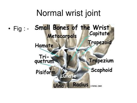 Normal Wrist Joint Powerpoint Presentation