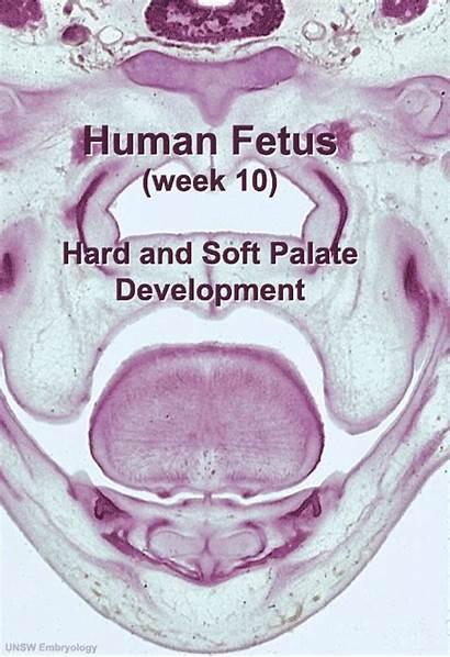 Palate Fetal Embryology Week Soft Development Hard