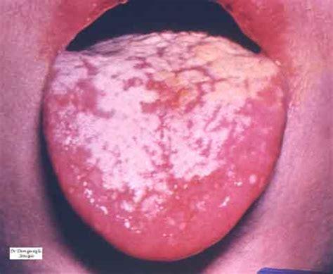 mycose du siege chez le bebe bouche langue salive herpes muguet aphtes