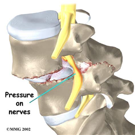 Artrose : kenmerken en verschijnselen van deze reuma