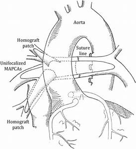 Early Complete Repair of Pulmonary Atresia With ...
