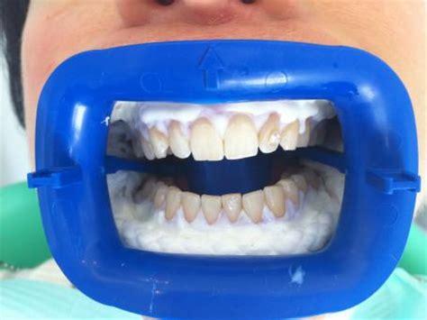 le blanchiment dents blanches ou pas conseil dentaire