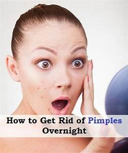 Pin On Clearing Acne Breakouts Fast And Naturally