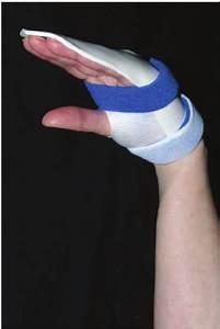 The Manchester Short Splint Permits Full Wrist Flexion