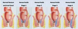 hemorrhoid surgery
