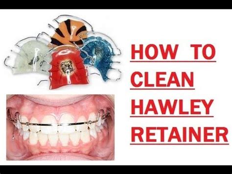 {#176} How I Clean My Hawley Retainer  Youtube