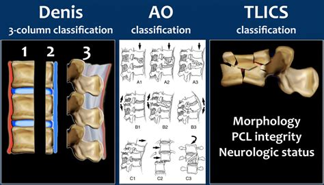 radiology assistant spine injury tlics classification
