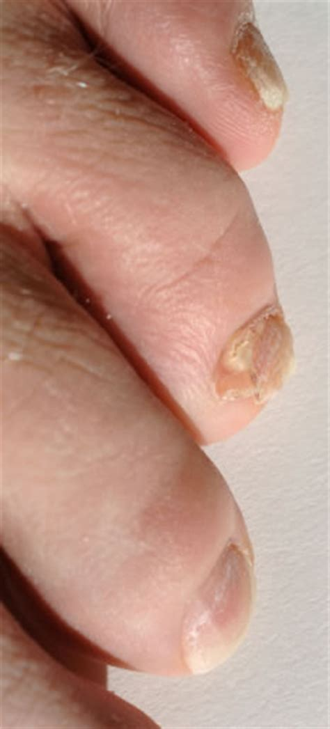 toe nail fungus removal toenail herbal remedies  nail