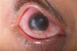 Corneal Ulcer San Jose Ca  Eye Consultants Of Silicon Valley