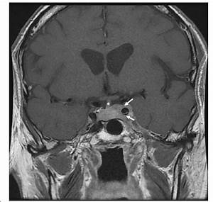 Mri Scan Of Cavernous Sinus Mass  Coronal Post