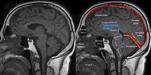 Mri Brain Anatomy