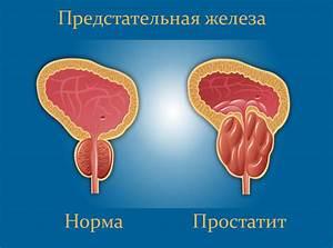 Аденома надпочечников диагностика лечение