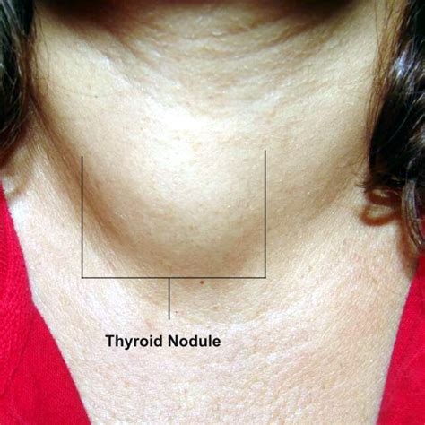 Image result for Thyroid Cancer Nodules