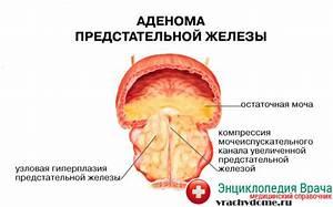 Народные средства после удаления аденомы простаты