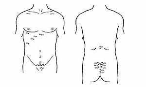 Уколы от простатита простакор