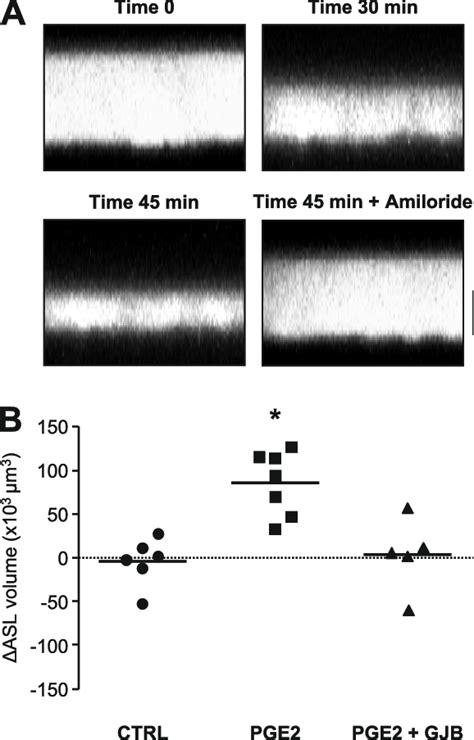 gjic dependent regulation  asl volume  primary haec