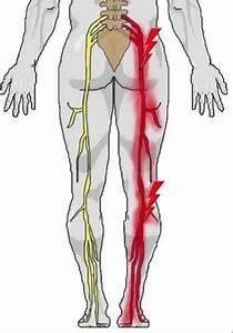 Sciatica Pain  U2013 For Effective Sciatica Treatment