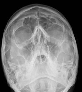 Zygomatic Arch Radiograph | www.pixshark.com - Images ...
