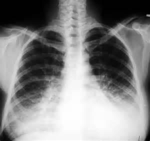 Viral pneumonia Pneumonia