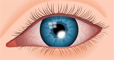 corneal ulcer symptoms   treatments