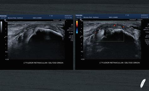 MSK Imaging Fundamentals – Ankle and Foot - Bird Ultrasound