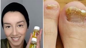 Elimina los hongos con este remedio youtube for Elimina infecciones con este remedio