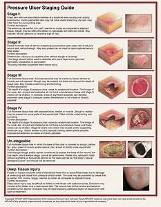 Pressure Ulcer Stages