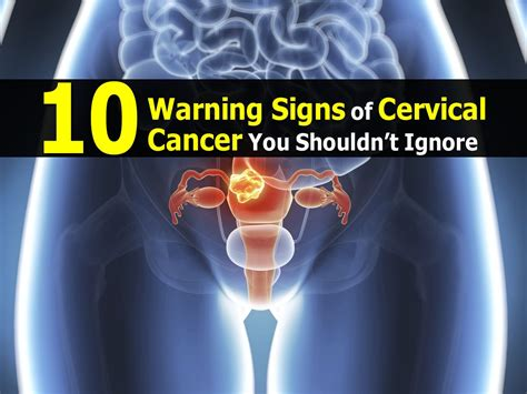 10 Warning Signs Of Cervical Cancer You Shouldn't Ignore. Cool Flower Murals. Rescue Dog Murals. Ladybug Birthday Banners. Sco Banners. Pinterest Love Signs. Cadillac Signs. Lsu Decals. Teth Lettering