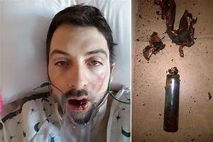 An e-cigarette exploded inside this man's mouth | New York Post