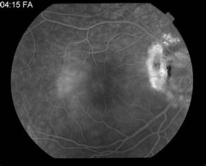 Optic Nerve Pit Related Serous Retinal Detachment - Retina ...