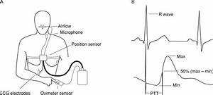 Pulse Transit Time  An Appraisal Of Potential Clinical