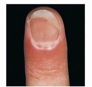 Acute paronychia =التهاب حاد ما حول الظفر
