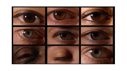 Blinking Eyes Eye Health Looking Doctors Business