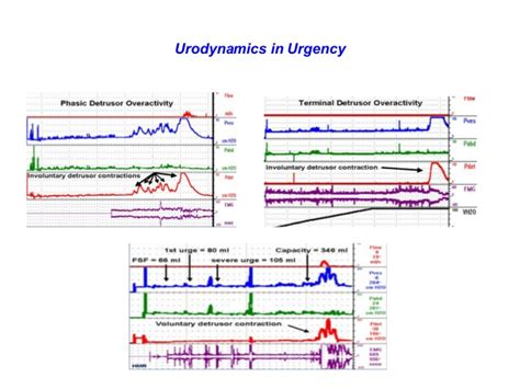 making sense  urodynamic studies  women  urinary