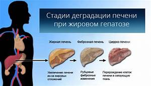 Меню для восстановления печени и поджелудочной железы