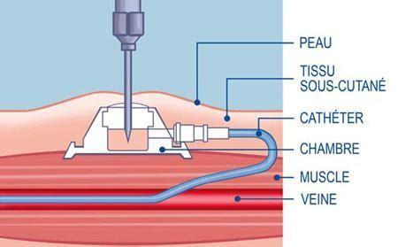 chambre implantable complications chimiothérapie une chambre implantable va m 39 être posée