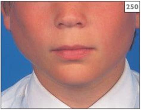 Swelling Salivary Gland Pain