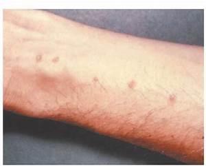 Helminthic Infections Part 4